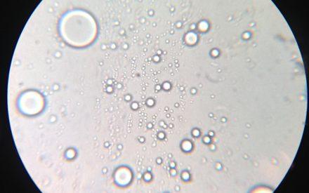 Coacervación compleja: una alternativa como un método de microencapsulación